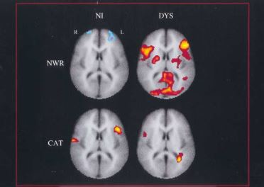 Neuroimage (Shaywitz et al., 2002)